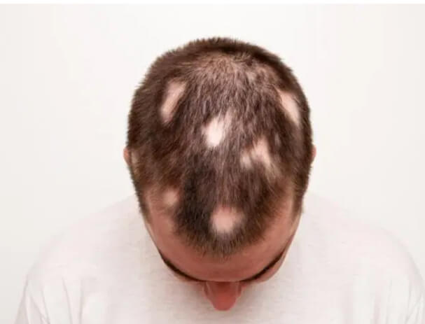 Chemotherapy Hair Loss Treatment in Jayanagar Bangalore