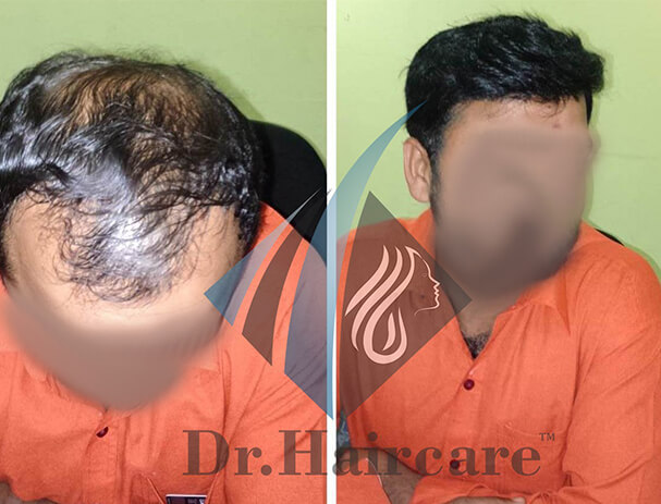 Non Surgical Hair Replacement in Bangalore