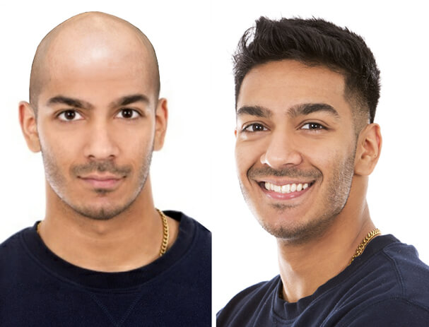 Non Surgical Hair Replacement Services in Bangalore